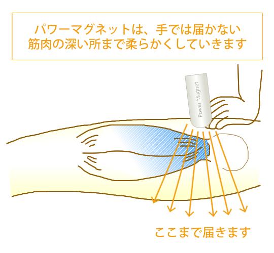 パワーマグネット®では手では届かない筋肉の深い所まで柔らかくしていきます。